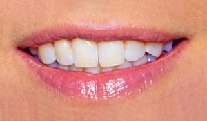Lippen vorher